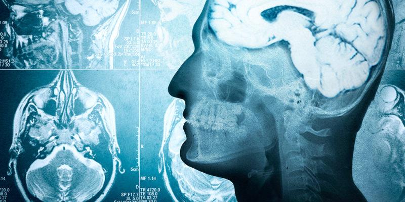 Brein in revalidatie