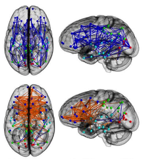 Seksisme in brein