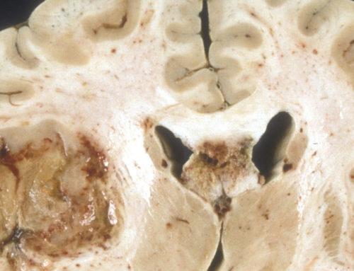 De meest gevreesde hersenkanker, het glioblastoom